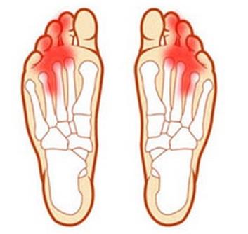 при ходьбе болит сустав на большом пальце ноги лечение