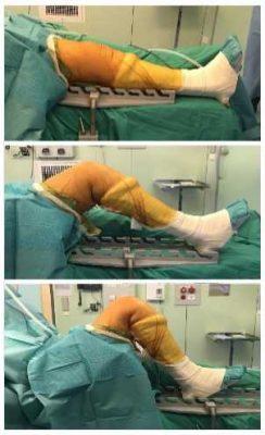 Держатель коленного сустава