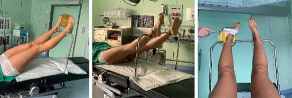 Мои ортопедические приспособления