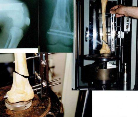 Мой вклад в Ортопедию