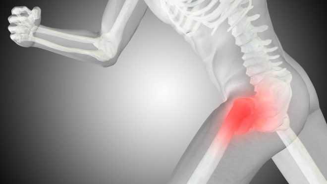 Общая информация об артрозе тазобедренного сустава