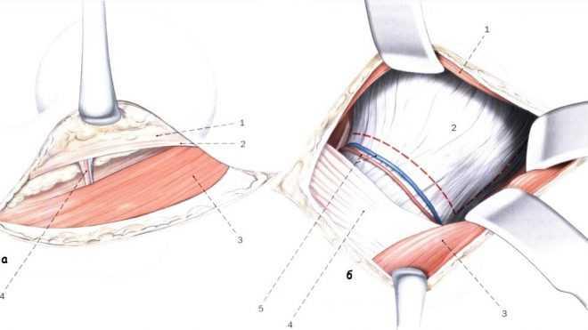 О размерах кожного разреза при протезировании тазобедренного сустава