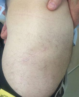 через 12 месяцев после операции