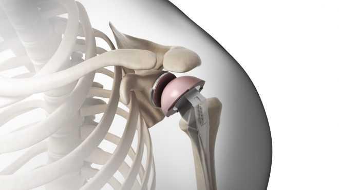 Некоторая информация о протезировании плечевого сустава
