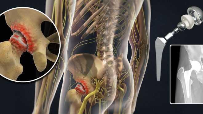 О протезах и операции эндопротезирования тазобедренного сустава