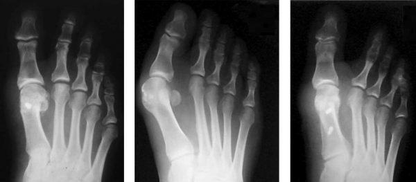 рентгенограммы и разрез кожи на ранних стадиях