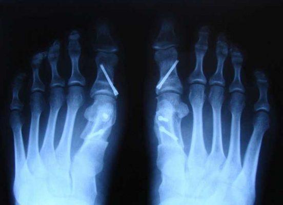 рентгенограмма, где уже видны признаки консолидации.