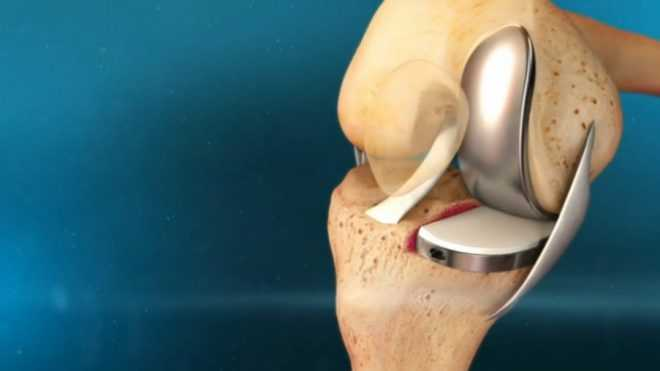 Одномоментное эндопротезирование коленных суставов