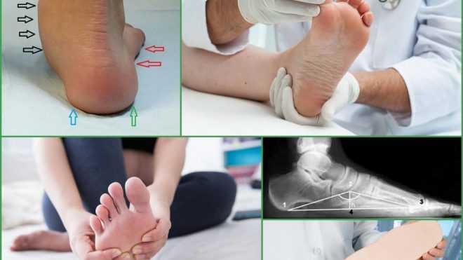Несколько примеров результатов лечения