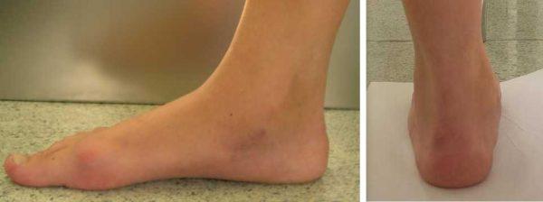 Вид той же стопы через 1 год после операцииВид той же стопы через 1 год после операции