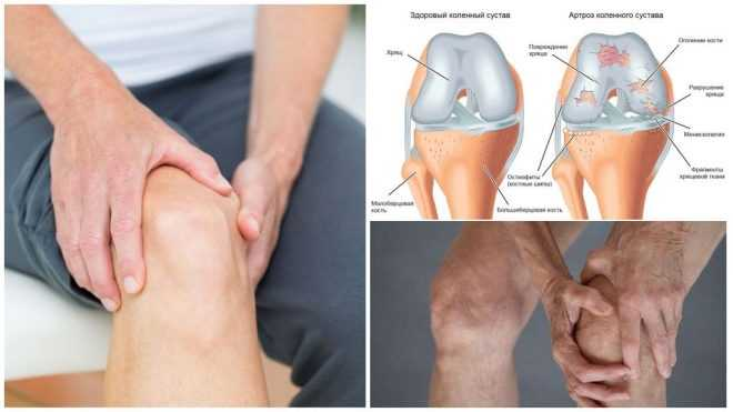 Об артрозе коленного сустава