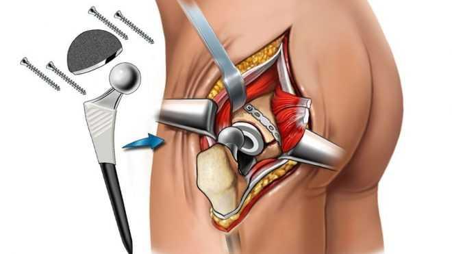 Информация для тех, кому показана операция эндопротезирования тазобедренного сустава