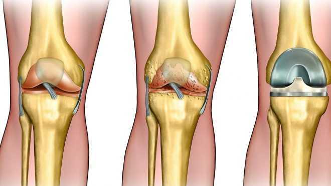 Американский взгляд на лечение артроза коленного сустава