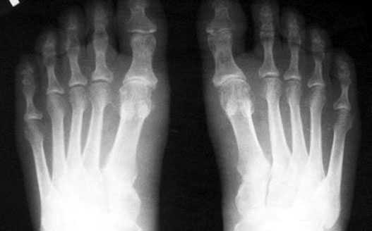 простой случай, эластичная стопа, нормальная анатомия костей