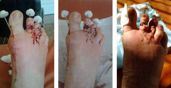 Вид стоп сразу после операции, через неделю и на момент снятия швов