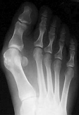 угол отклонения плюсневой кости ещё больше