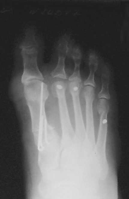 отклонение первой плюсневой кости слишком большое