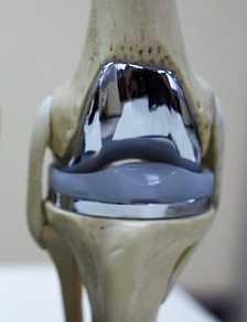 О современных эндопротезах коленного сустава