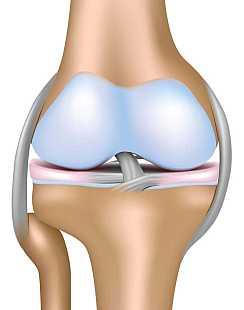 О протезировании коленного сустава